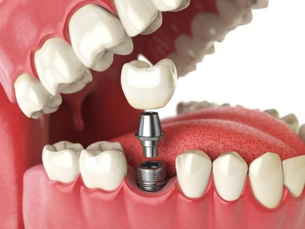 bfc_implants6