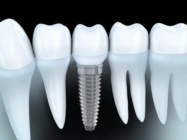 bfc_implants7
