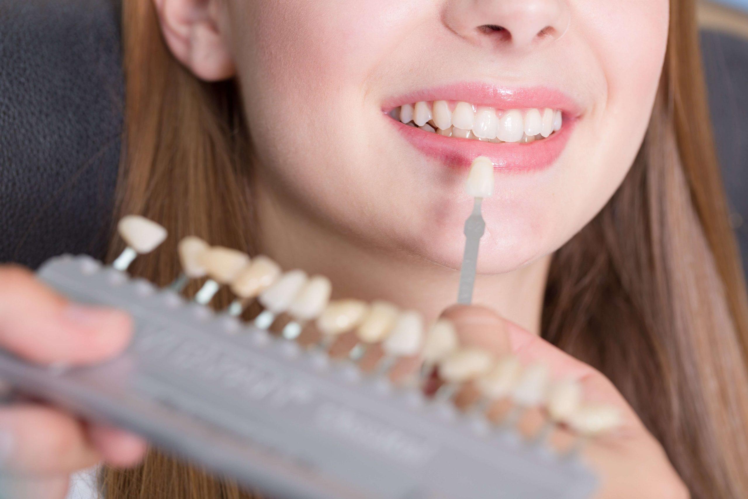 เคล็ดลับฟันขาว 2