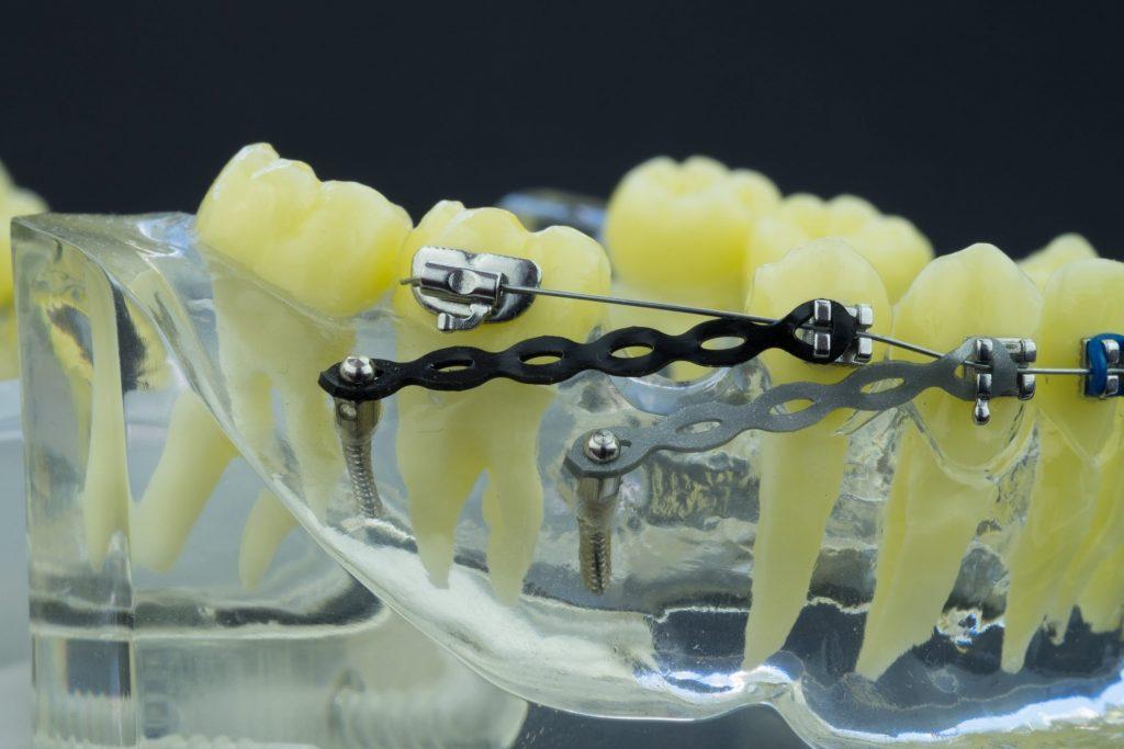หมุดจัดฟัน