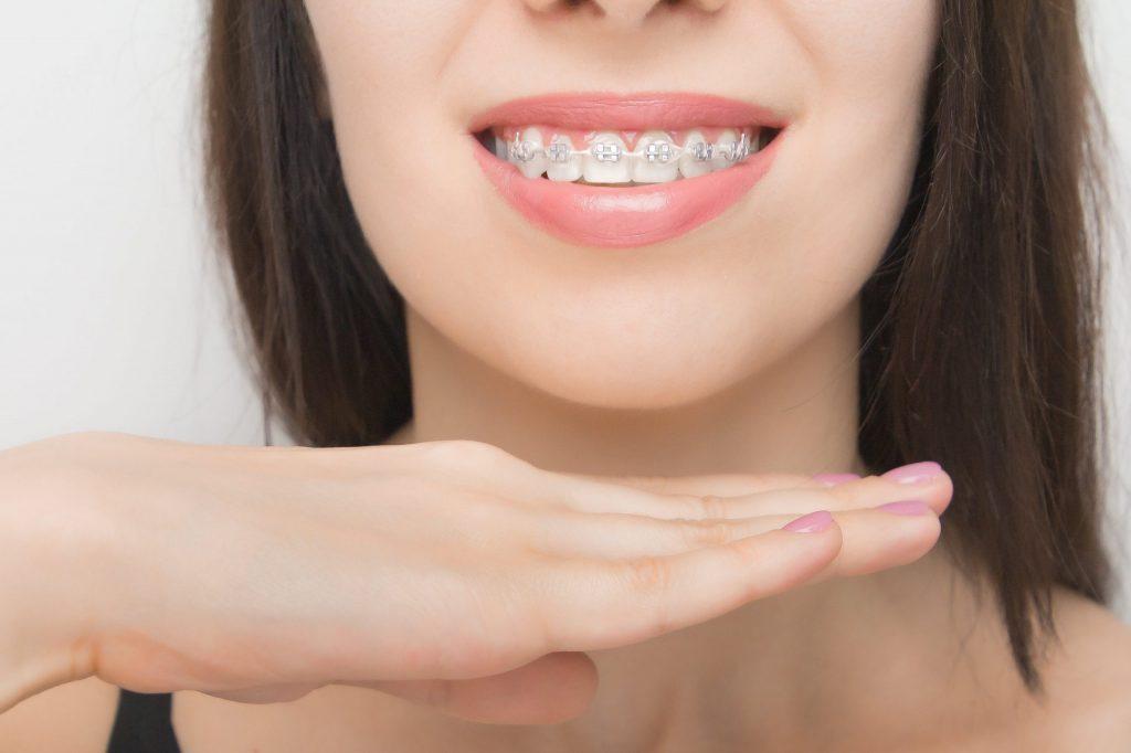 จัดฟันต้องใช้เวลานาน